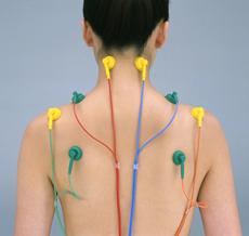 低周波経皮的電気刺激療法(SSP療法)